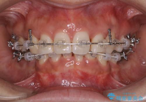 総合歯科ならではのメリット 矯正中にもPMTCをの治療後