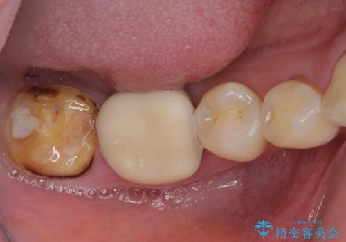 奥歯の壊れたり汚れたりしたクラウン オールセラミッククラウンによる審美歯科治療 の治療前