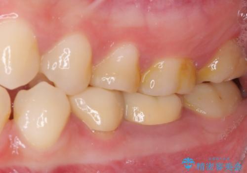 深い虫歯で歯茎が腫れる 部分矯正を用いたむし歯治療の治療前