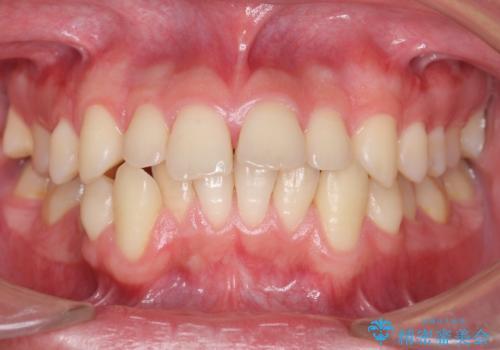 すきっ歯・出っ歯が気になる インビザライン矯正 乳歯をインプラントにの症例 治療前