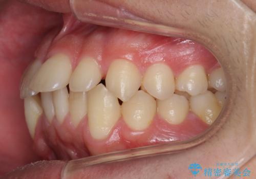 すきっ歯・出っ歯が気になる インビザライン矯正 乳歯をインプラントにの治療前