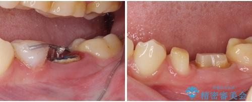 深い虫歯で歯茎が腫れる 部分矯正を用いたむし歯治療の治療中