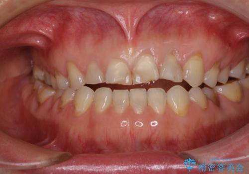 欠けてガタガタの前歯 オールセラミッククラウンによる補綴治療の治療前