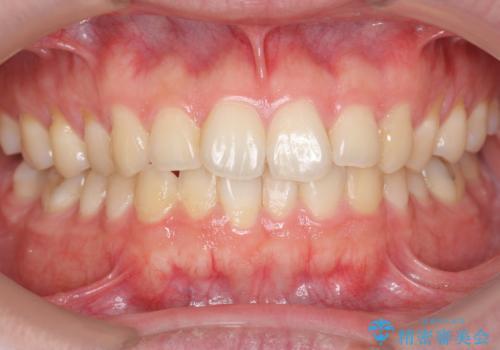 ホワイトニングで歯を白く!の治療前
