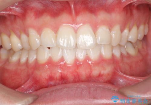 ホワイトニングで歯を白く!の治療後