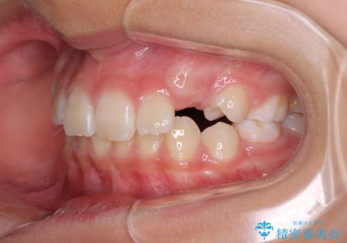 埋もれた犬歯を引っ張り出す 小学生のⅠ期治療の治療前