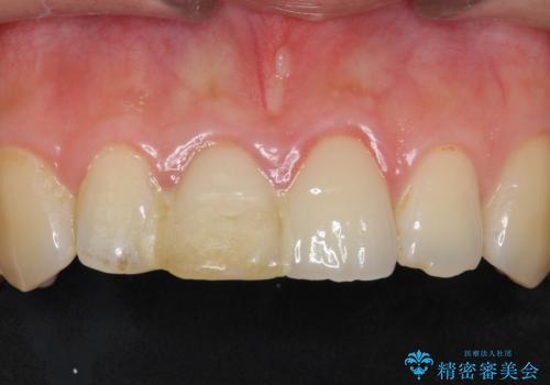 歯が折れた セラミックで綺麗に 30代女性の治療前
