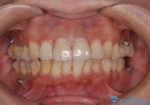 インビザライン中の歯石取り PMTCの治療前