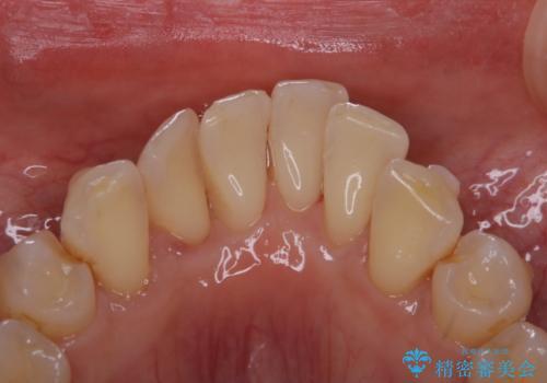 インビザライン中の歯石取り PMTCの治療後