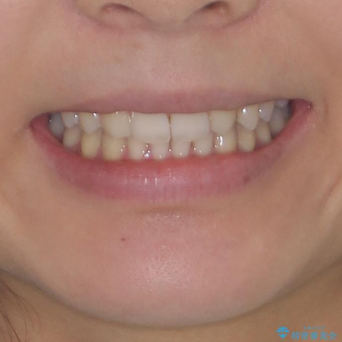 上顎前歯が2本欠損 インビザラインによる叢生の解消の治療後(顔貌)