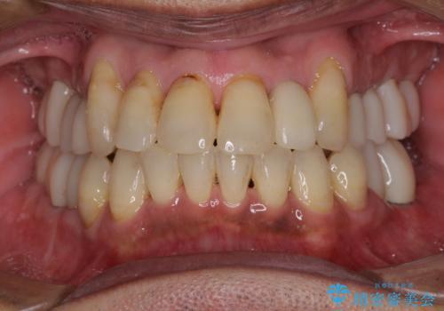 歯列不正と歯周病 総合歯科治療による全顎治療の症例 治療後