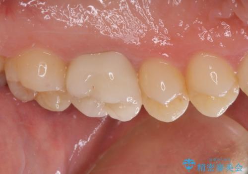 他院で神経を取ると言われた 神経を極力残した虫歯治療の治療後