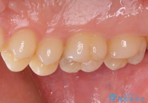 フロスが引っかかる セラミックインレーによるむし歯治療の治療前