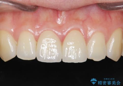 歯が折れた セラミックで綺麗に 30代女性の治療後