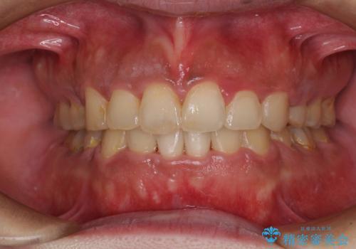 口元の突出感を改善 ワイヤー装置による抜歯矯正の治療後