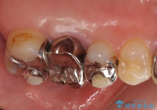 オールセラミッククラウン 抜歯になった奥歯の欠損補綴の治療前