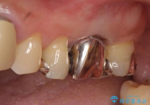 オールセラミッククラウン 抜歯になった奥歯の欠損補綴の症例 治療前