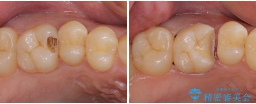 フロスが引っかかる セラミックインレーによるむし歯治療の治療中