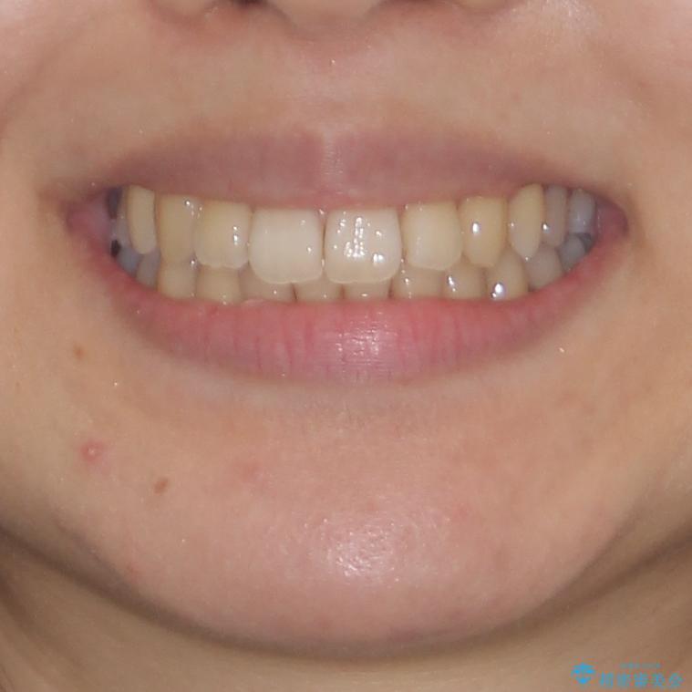 インビザラインでスッキリとした口元にの治療後(顔貌)