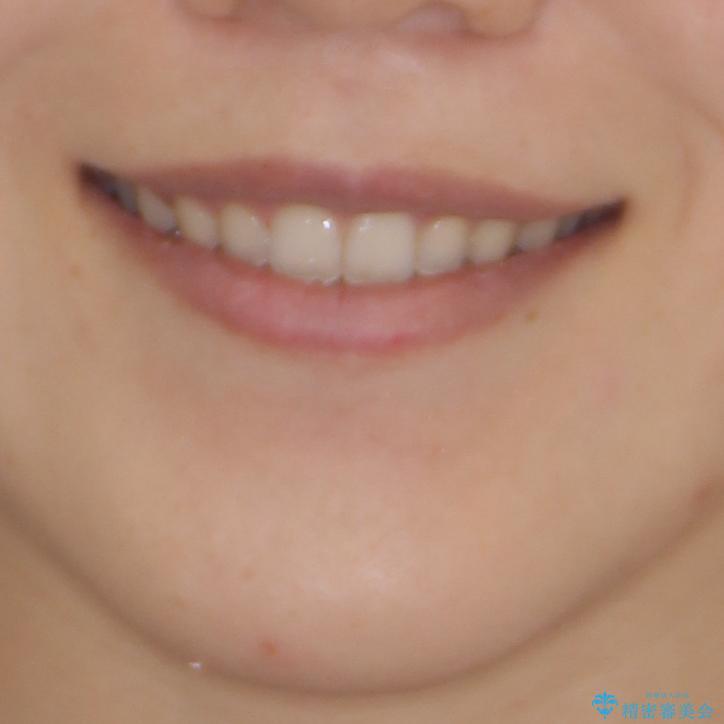 気になる隙間の再矯正 前歯をインビザライン・ライトで改善の治療後(顔貌)