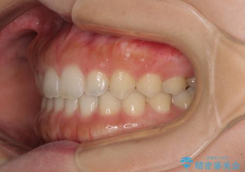 気になる隙間の再矯正 前歯をインビザライン・ライトで改善の治療後