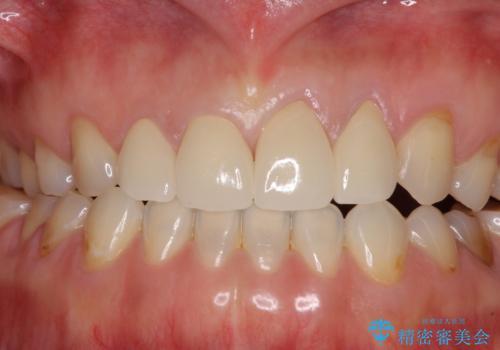 欠けてガタガタの前歯 オールセラミッククラウンによる補綴治療の治療後