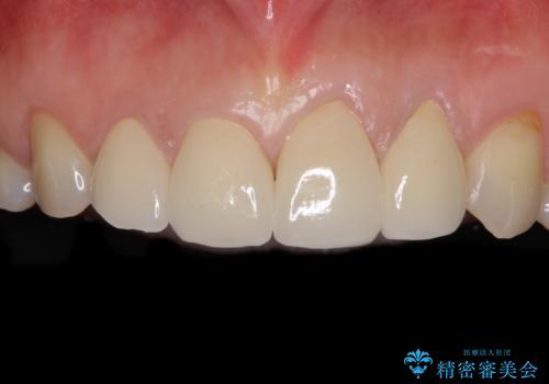 欠けてガタガタの前歯 オールセラミッククラウンによる補綴治療の症例 治療後