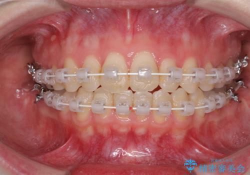 前歯のデコボコを改善 目立たないワイヤー矯正の治療中