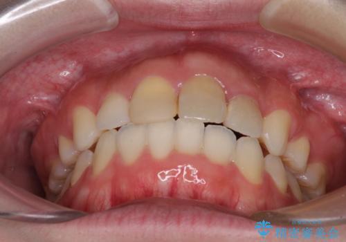 抜歯矯正の後戻り インビザラインによるオープンバイトの再矯正の治療後