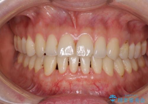下顎前歯の歯肉退縮 歯肉移植による根面被覆の治療後