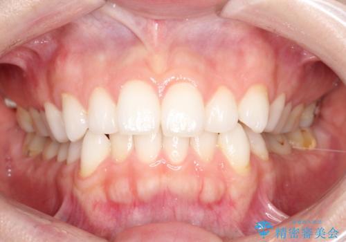前歯のがたつきをインビザラインで目立たず矯正治療の治療前
