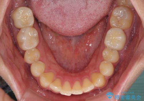 銀歯を白くしたい セラミックによる審美歯科治療の治療後