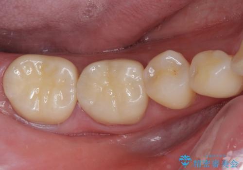 奥歯の壊れたり汚れたりしたクラウン オールセラミッククラウンによる審美歯科治療 の症例 治療後