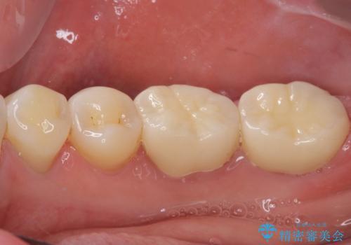 奥歯の壊れたり汚れたりしたクラウン オールセラミッククラウンによる審美歯科治療 の治療後