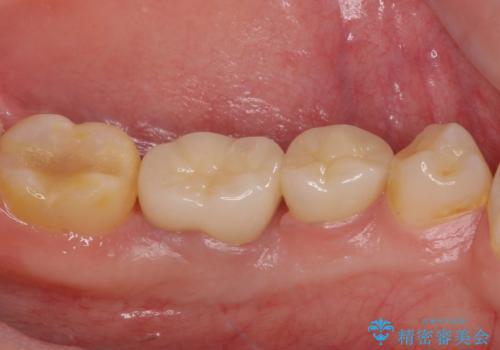 深い虫歯で歯茎が腫れる 部分矯正を用いたむし歯治療の治療後