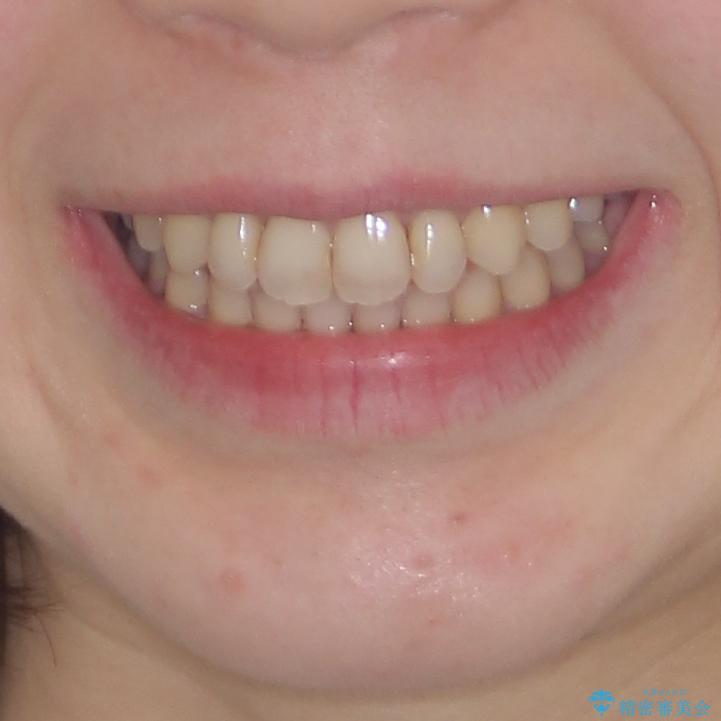 前歯のデコボコを改善 目立たないワイヤー矯正の治療後(顔貌)