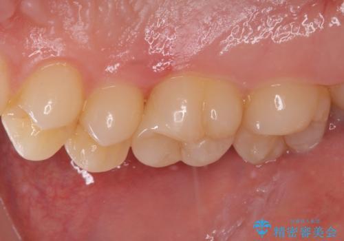 フロスが引っかかる セラミックインレーによるむし歯治療の治療後