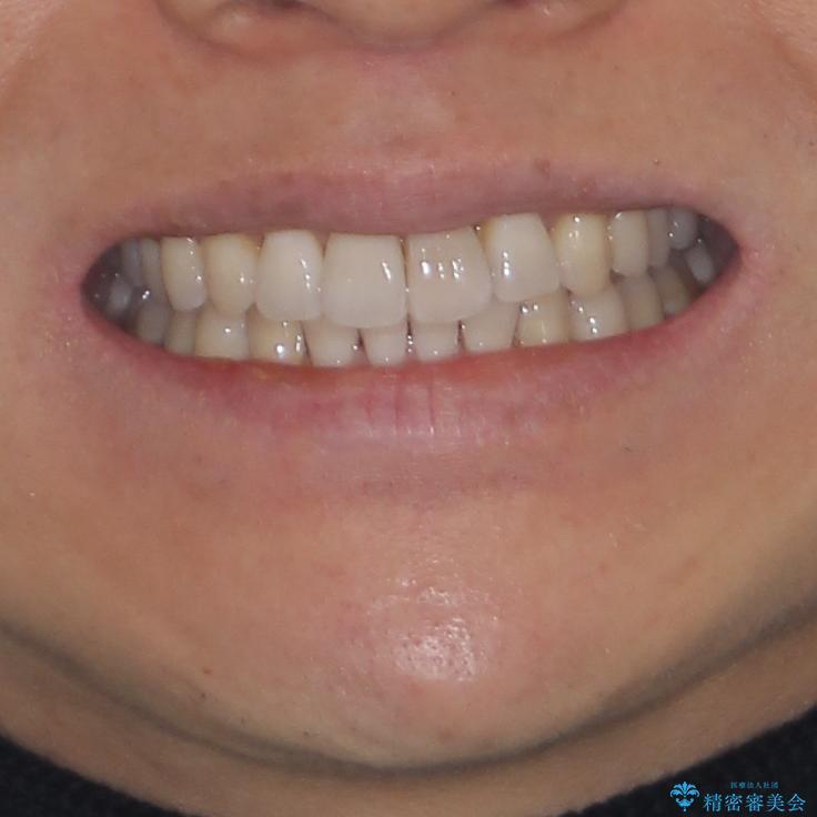 前歯のデコボコを治したい インビザラインによる矯正治療の治療後(顔貌)