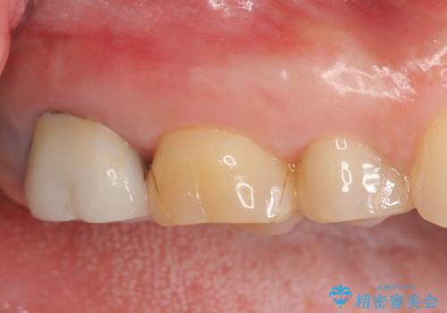 オールセラミッククラウン 虫歯治療・再根管治療の治療前