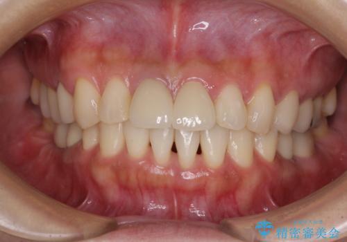 歯周ポケットの除去の症例 治療後
