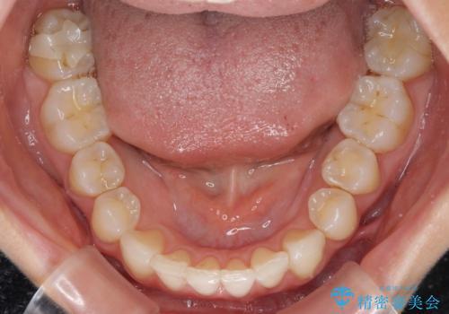 上顎前歯が2本欠損 インビザラインによる叢生の解消の治療後