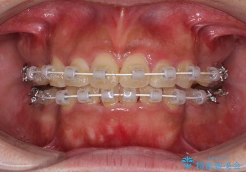 口元の突出感を改善 ワイヤー装置による抜歯矯正の治療中
