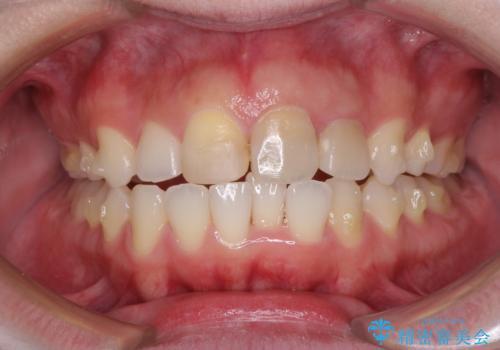 抜歯矯正の後戻り インビザラインによるオープンバイトの再矯正の治療中