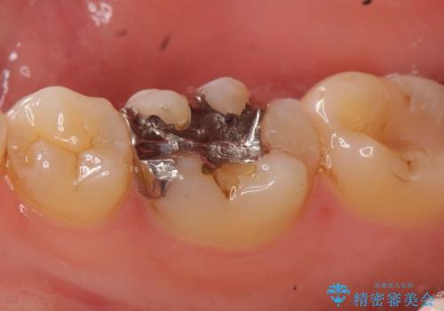 セラミックインレー 気になる銀歯を白い歯への治療前