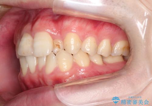 インビザラインとセラミック治療で整った歯並びへの治療前