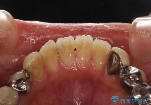 治療のスタート前に着色・ステインをPMTCできれいに除去の治療前