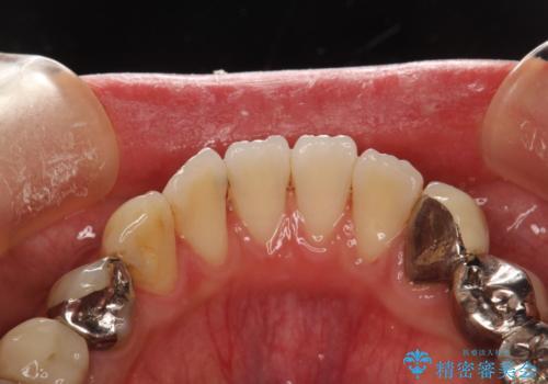 治療のスタート前に着色・ステインをPMTCできれいに除去の治療後