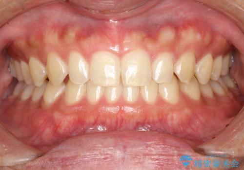 歯の染め出しとPMTCで歯ブラシ指導とクリーニングの治療前