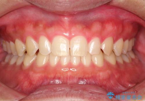歯の染め出しとPMTCで歯ブラシ指導とクリーニングの治療後