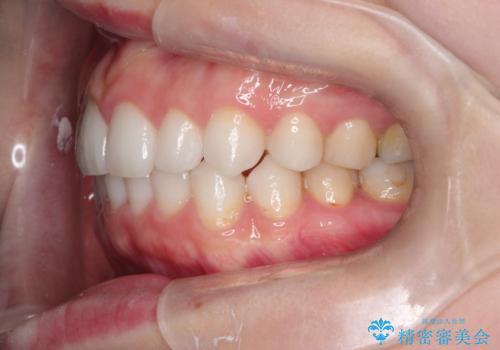 前歯のがたつきをインビザラインで目立たず矯正治療の治療中